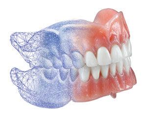 Van der Male Tandprothetiek - Digitale gebitsprothese