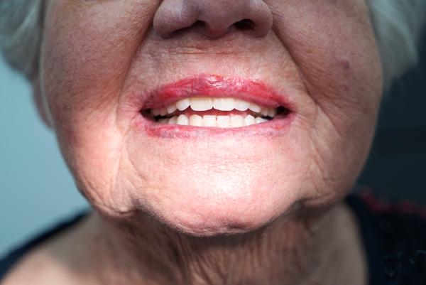Van der Male Tandprothetiek - Uw gebitsprothese laten controleren