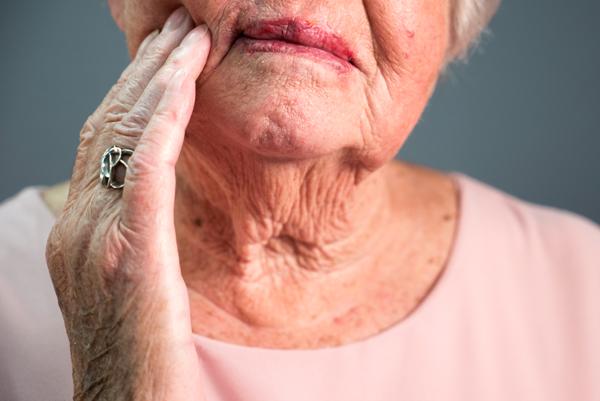 Van der Male Tandprothetiek - U heeft klachten door uw huidige gebitsprothese