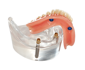 Van der Male Tandprothetiek - Klikgebit