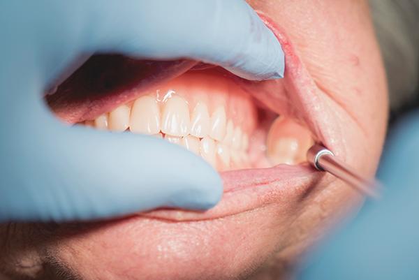 Van der Male Tandprothetiek - Nacontrole van de gebitsprothese