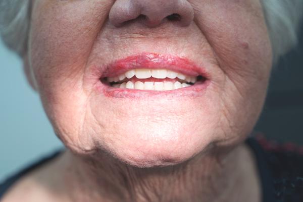 Van der Male Tandprothetiek - Het plaatsen van de definitieve gebitsprothese